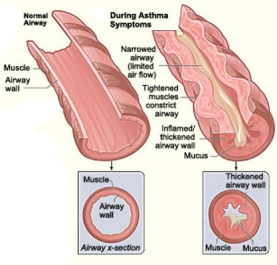 15-asthma-schematic