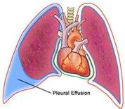 599_Pleural_Effusion