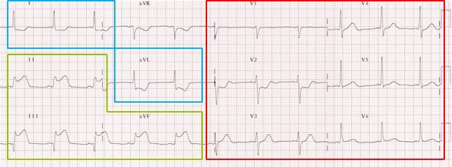 ECG analysis Answers.jpg