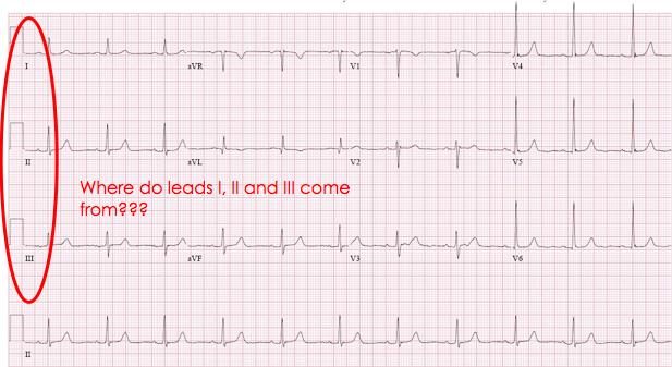 ECG leads I, II, III