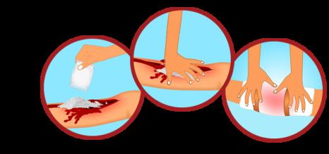 stopping bleeding