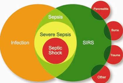 sepsis-septic-shock