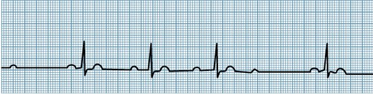 2nd degree Heart block type 1 wenkebach ecg