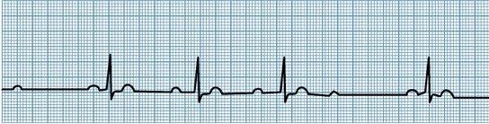 2nd degree Heart block type 1 wenkebach ecg