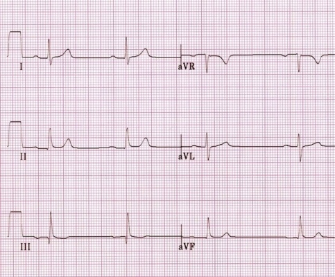 normal cardiac axis ecg practice