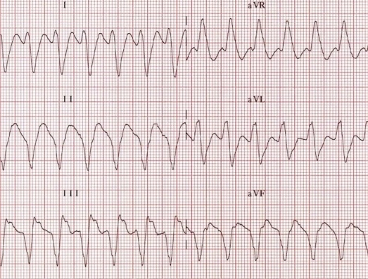 extreme cardiac axis deviation ECG