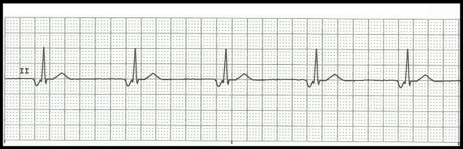 junctional rhythm ecg