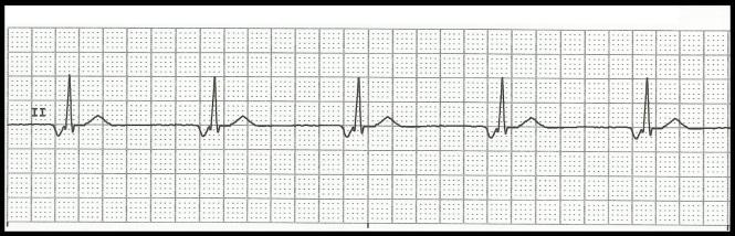 junctional rhythm ecg
