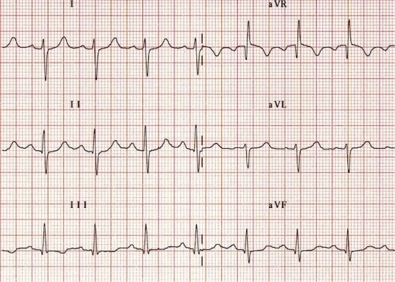 right cardic axis deviation RAD ECG