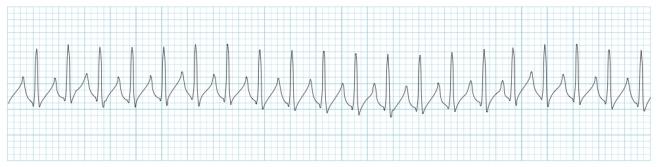 supraventricular tachycardia SVT ECG