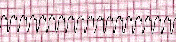 ventricular tachycardia VT ECG