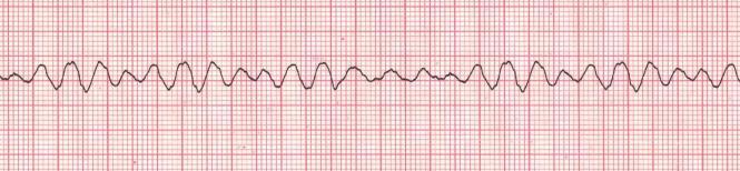 ventricular fibrillation VF ECG
