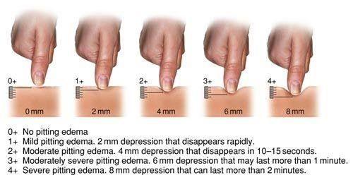 pitting oedema assessment